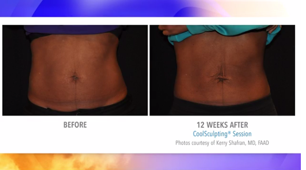 Get Ready For Summer With Cool Sculpting From Riva
